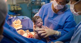 طفلة تجتاح العالم منذ لحظة ولادتها… نظرة عابسة ومن دون بكاء!