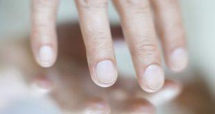 تغيرات محددة في الأظافر قد تشير إلى الإصابة بمرض الكبد الدهني
